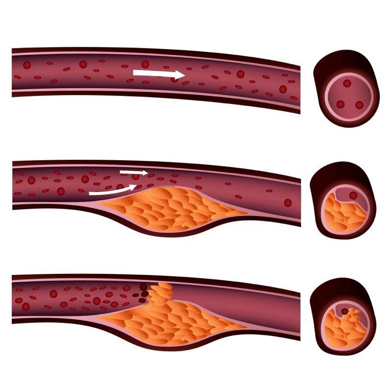 atheriosclerose