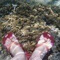 Les pieds aquatiques