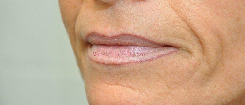 lèvres cicatrisées