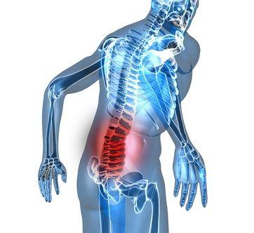 Hijama dorsalgie (mal de dos) et cervicalgie (douleur à la nuque)